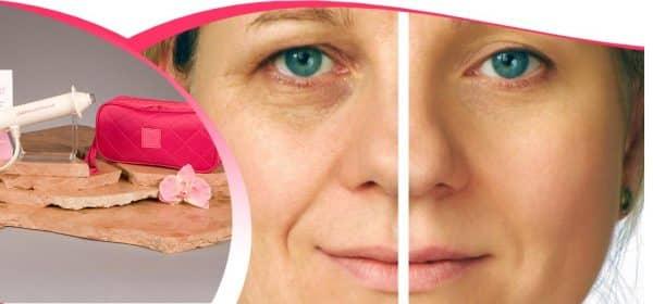 Aparat de intinerire faciala cu OXIGEN, ingrijire faciala, aparat cosmetica
